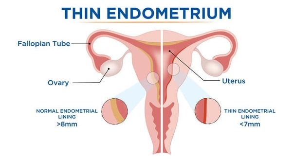 fertility-issue-thin-endometrium